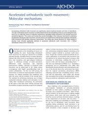 Accelerated orthodontic tooth movement.pdf